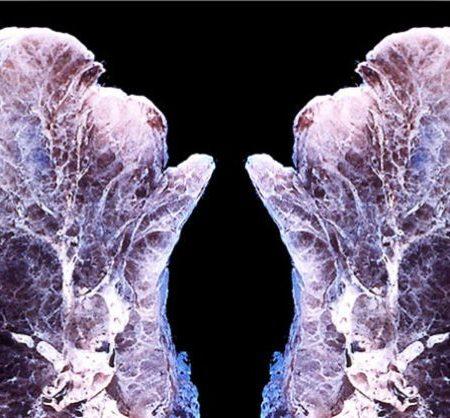 Ето това се случва с вашите бели дробове, когато дифузирате етерични масла