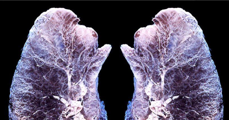 вашите бели дробове при вдишване на етерични масла